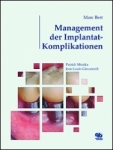 Management der Implantat-Komplikationen.