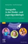 Sonografie in der Kinder- und Jugendgynäkologie.