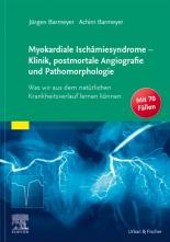 Myokardiale Ischämiesyndrome - Klinik, postmortale Angiografie und Pathomorphologie.