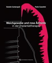 Weichgewebe und rosa Ästhetik in der Implantattherapie.