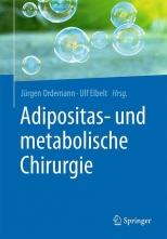 Adipositas- und metabolische Chirurgie.