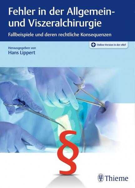 Fehler in der Allgemein- und Viszeralchirurgie