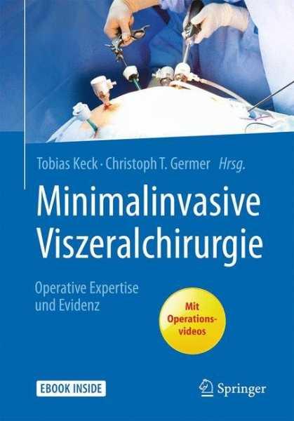 Minimalinvasive Viszeralchirurgie