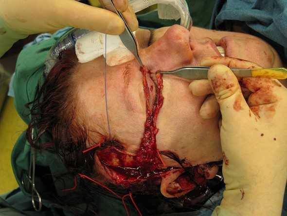 Plastische Chirurgie & Schönheitschirurgie: Ätze,