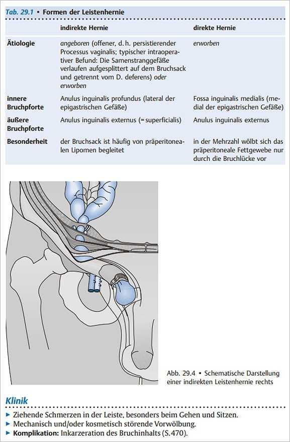 Wunderbar Untere Extremität Knochen Anatomie Galerie - Anatomie Von ...